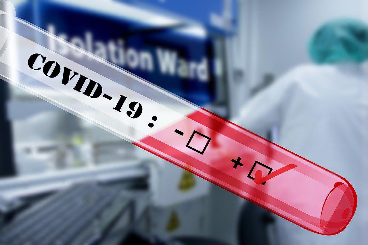 L'agence régionale de santé revient en détails sur la nouvelle stratégie de tests, en cours de déploiement.